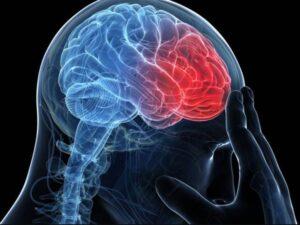 Как диагностировать рассеянный склероз на МРТ