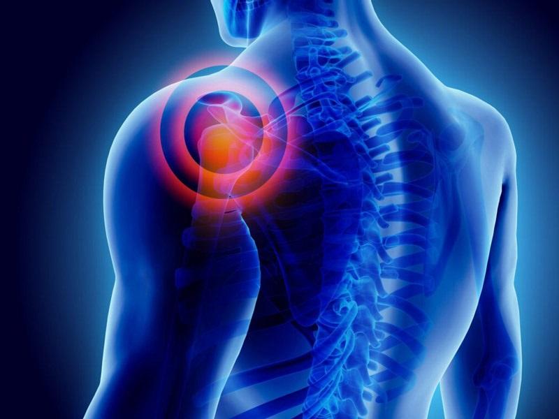 КТ плечевого сустава