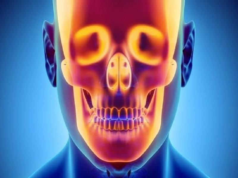 КТ костей черепа